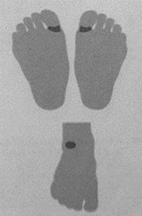 Описание: Массаж ног от зубной боли